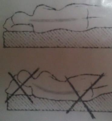 Нажмите на изображение для увеличения Название: Как правильно спать при остеохондрозе.jpg Просмотров: 439 Размер:54.4 Кб ID:1181